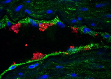 Elucidating the pathogenic mechanism of meningococcal meningitis