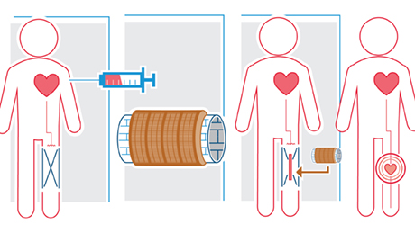 Engineering mini-hearts that can be put wherever the circulatory system could use an extra push