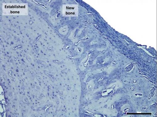 New method increases targeted bone volume by 30 percent