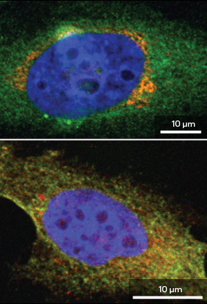 Exercising restraint to stall tumor growth