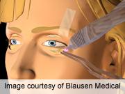 Fat preservation better for lower eyelid blepharoplasty