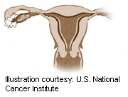 FDA advisers weigh risks of procedure for removal of uterine fibroids
