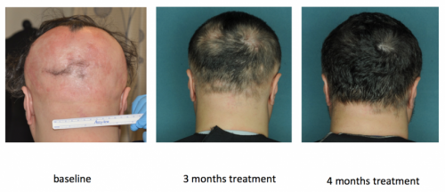 FDA-approved drug restores hair in patients with Alopecia Areata
