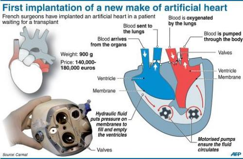 First implantation of a new make of artificial heart