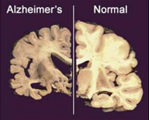 Genentech Alzheimer's drug misses goals in studies