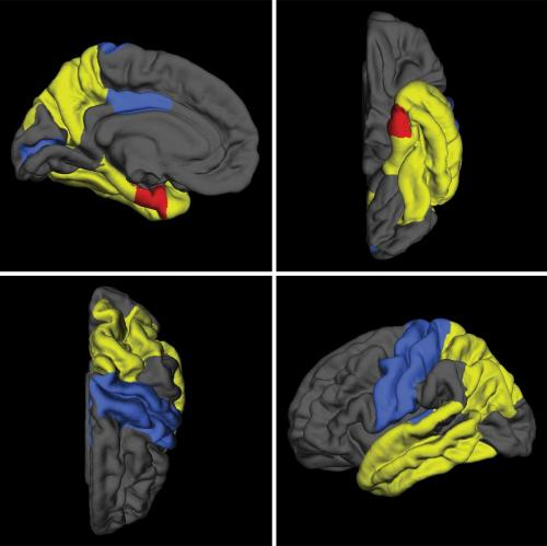 Gene variation associated with brain atrophy in mild cognitive impairment
