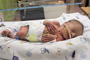 Gut bacteria in preemies altered by hospital stay, study finds