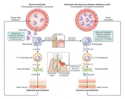 Researchers reverse bone loss in immune disorder