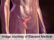 Hormones, vaginal flora impact cervicovaginal lavage