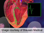 HRS: bariatric surgery may prevent A-fib onset in obese