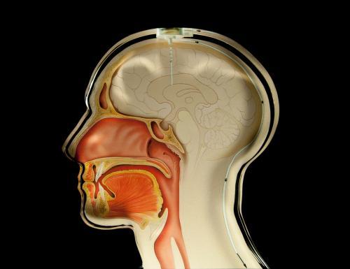 Hydrocephalus: sensors monitor cerebral pressure