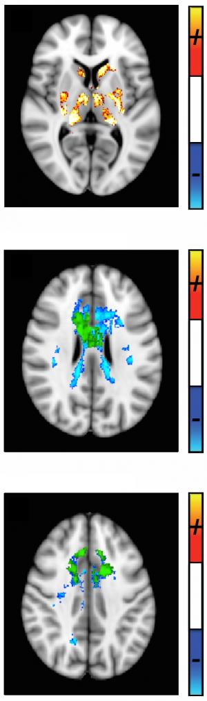 Imaging scientists develop a better tool for tracking MS