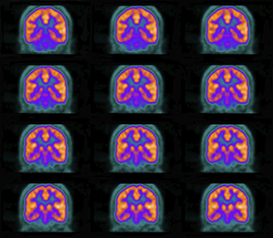 Imaging the brain's energy usage