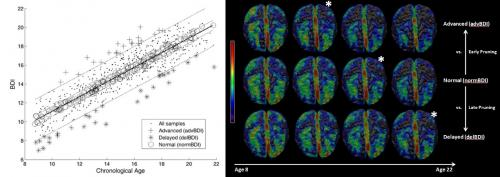 Index detects early signs of deviation from normal brain development