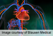 In STEMI, hyperglycemia tied to larger myocardial area-at-risk