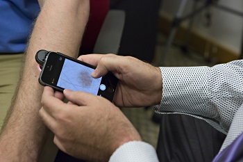 iPhone app offers quick and inexpensive melanoma screening