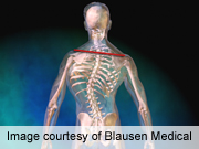 Low BMI tied to better surgical scoliosis curve correction