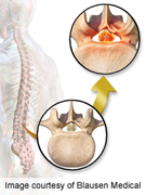 Lumbar spinal stenosis surgery rates vary by race