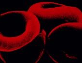 Merck recalls cholesterol drug liptruzet