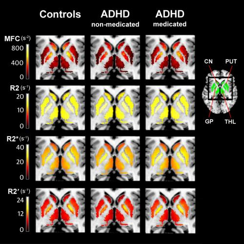 MRI technique may help prevent ADHD misdiagnosis