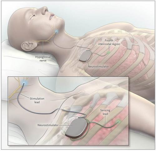 New device can reduce sleep apnea episodes by 70 percent, Pitt-UPMC study shows