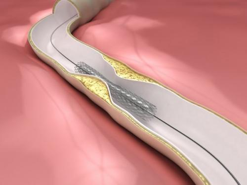 New drug-eluting stents more effective