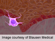 New prognostic factors may be useful in staging melanoma