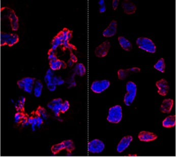 No extra mutations in modified stem cells, study finds