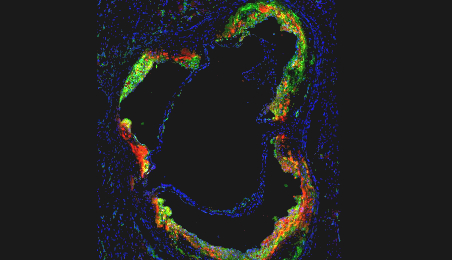 Novel nanotherapy breakthrough may help reduce recurrent heart attacks and stroke