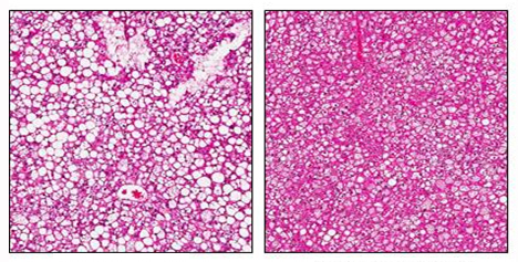 Obesity-induced fatty liver disease reversed in mice