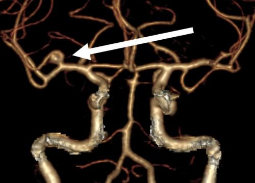 One-third of all brain aneurysms rupture: the size is not a significant risk factor