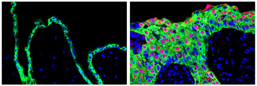 Overexpression of splicing protein in skin repair causes early changes seen in skin cancer