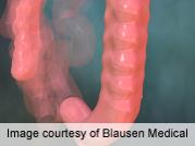 Patient activation predicts bowel preparation quality