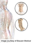 Patient variables predict expectations in spine surgery