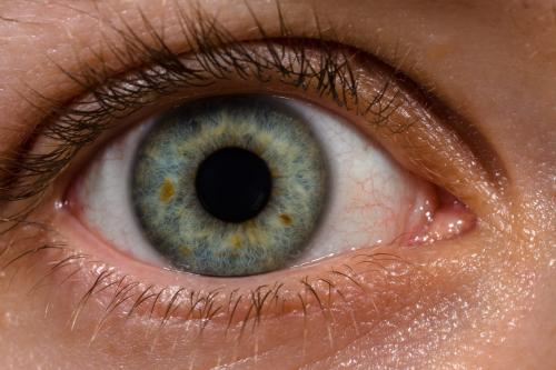 Planet hunter sharpens eye surgery