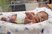 Preemies' thinking skills may catch up by adolescence