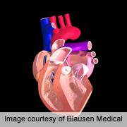 Pre-load stress echo benefits heart failure prediction