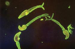 Progress in understanding immune response in severe schistosomiasis