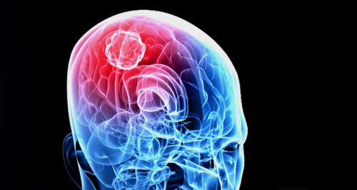 Radically modified cells may stunt brain tumor growth