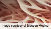 Romosozumab increases bone mineral density post-menopause