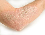 Secukinumab effective in moderate-to-severe psoriasis
