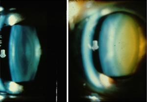 Software to grade cataracts could lead to improved management