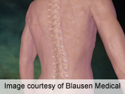Studies of nonoperative tx for discogenic back pain lacking