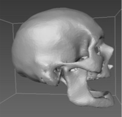 Study: CT scans could bolster forensic database to ID unidentified remains