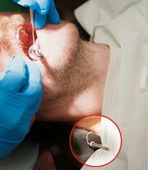 Study finds dental bib clips still harbor bacteria after disinfection