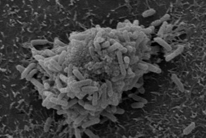 Sugary bugs subvert antibodies