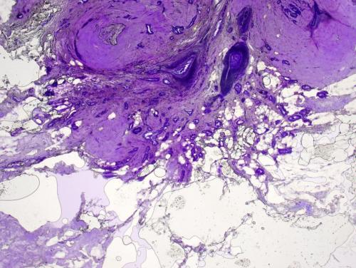 Tissue testing during breast cancer lumpectomies