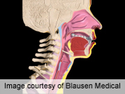 Tracheal allograft stable after immunosuppressive therapy