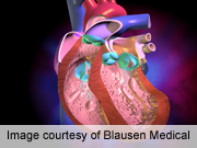 Transcatheter valve implantation benefits even very elderly