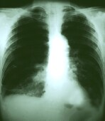 Tuberculosis in U.S. hits record low: CDC